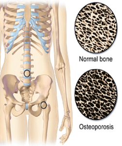 Comparison of Normal Bone With Osteoporosis