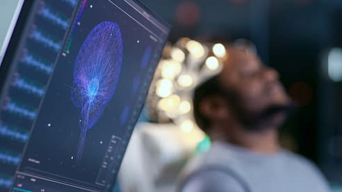 man participating in a sleep study and a computer monitor showing his brain activity