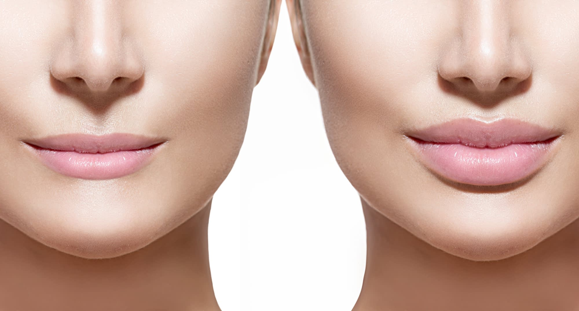 Juvederm Bergen County NJ