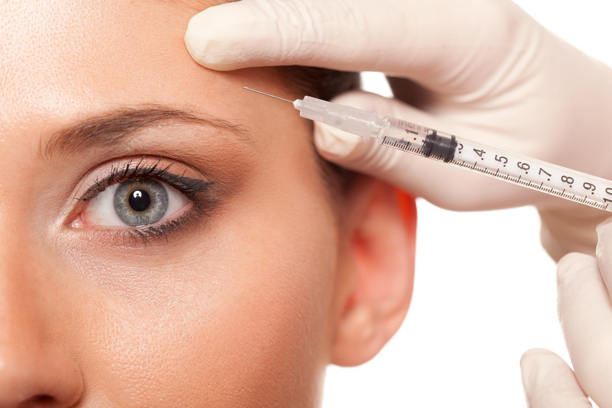 facelilft vs botox