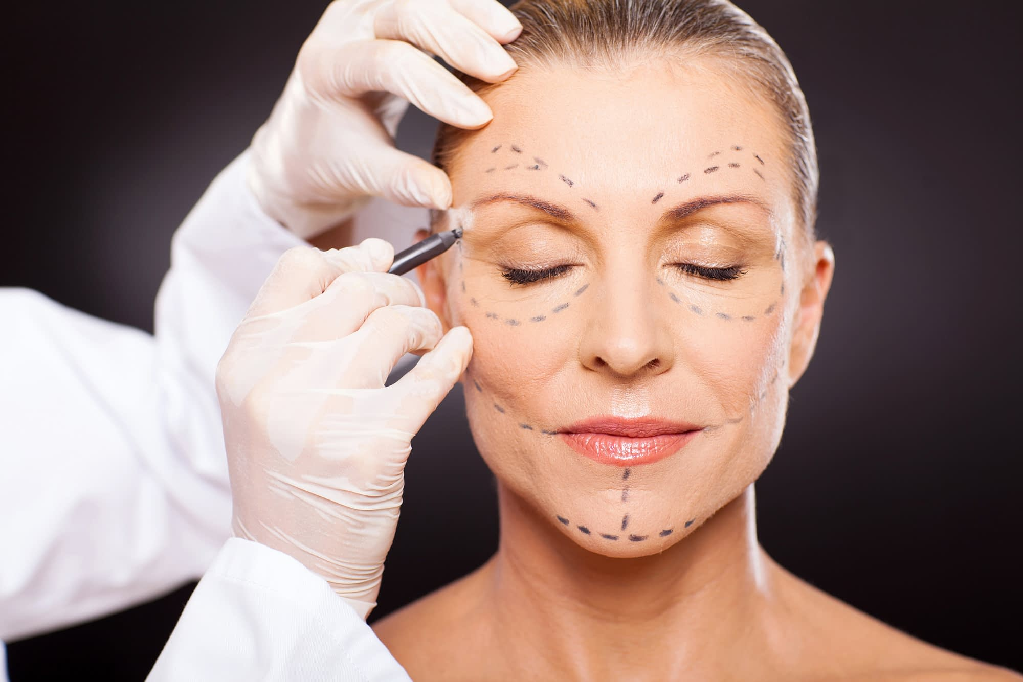 plastic surgery to look younger