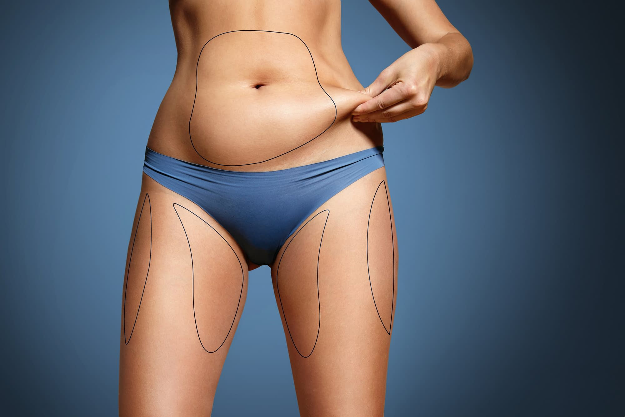 liposuction nj