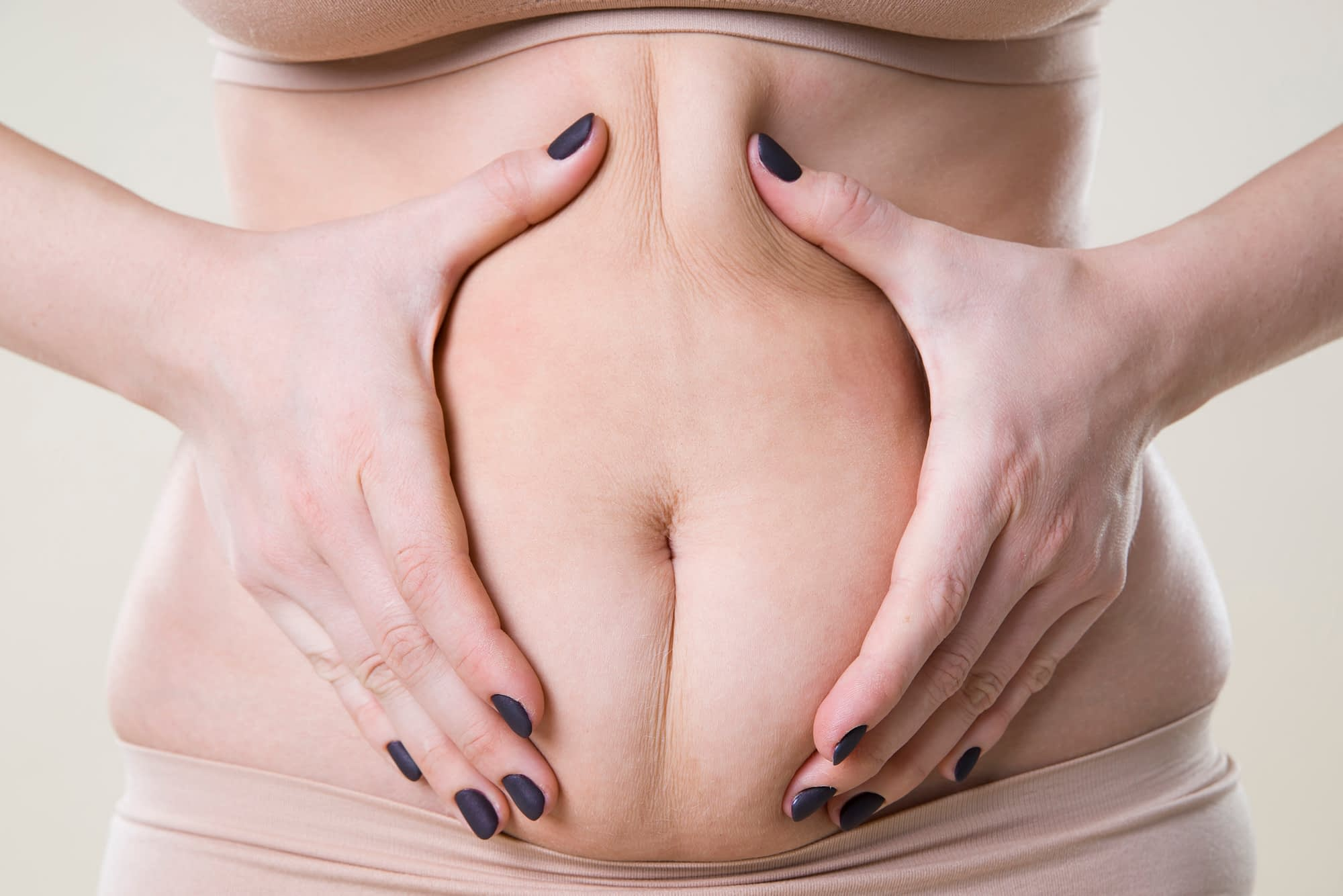 tummy tuck risks