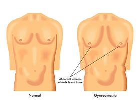 Gynecomastia Surgery NJ