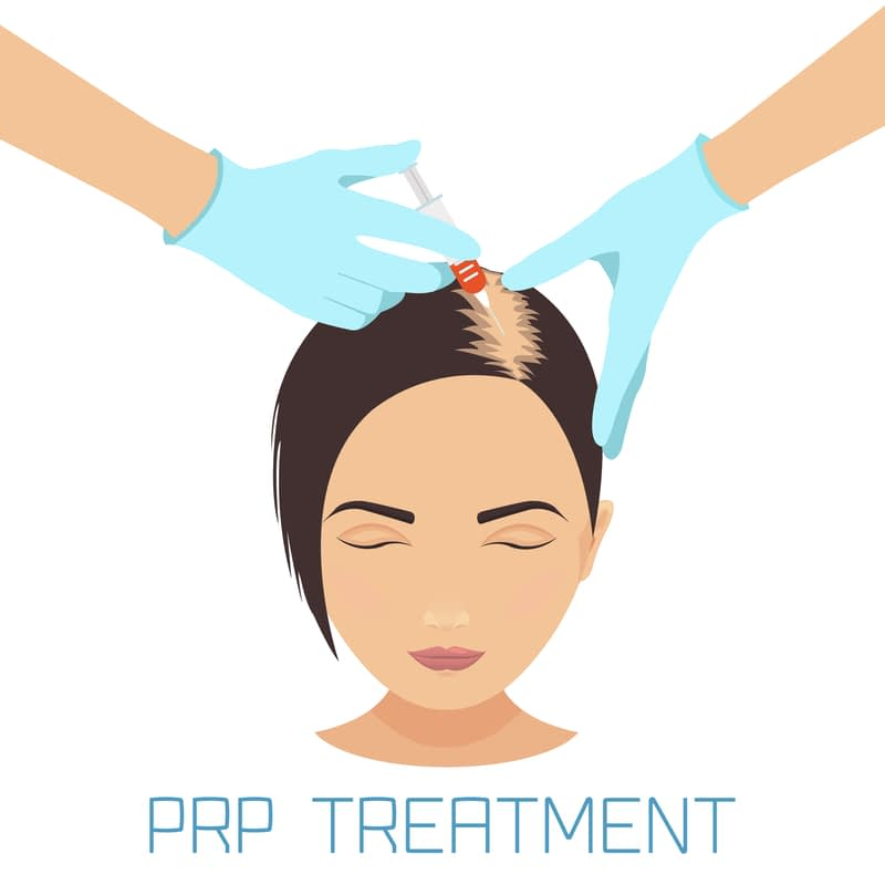 PRP Hair Loss NJ Berlet Plastic Surgery