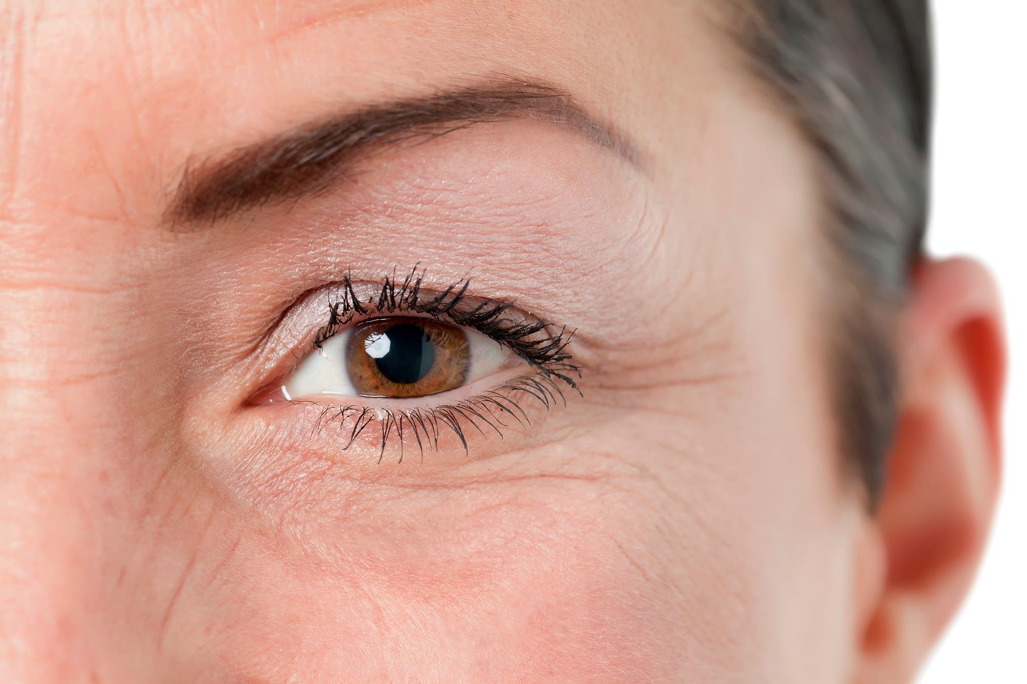 blepharoplasty eyelid surgery nj