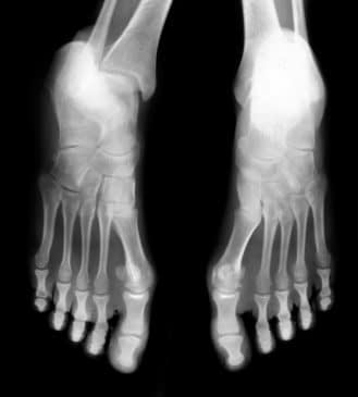 Study Finds Link between Acne and RA in Feet