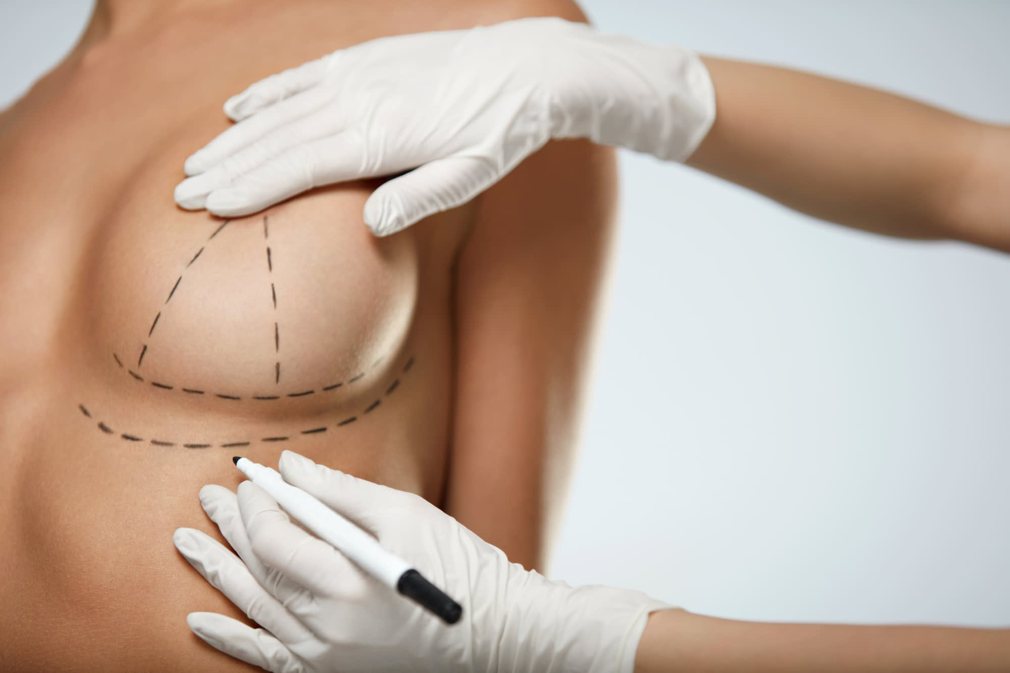 breast augmentation no scar