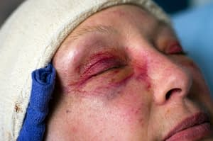 Woman with bandaged head and bruising around her eyes