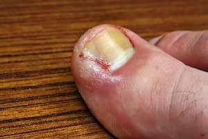 Ingrown - toe bleeding