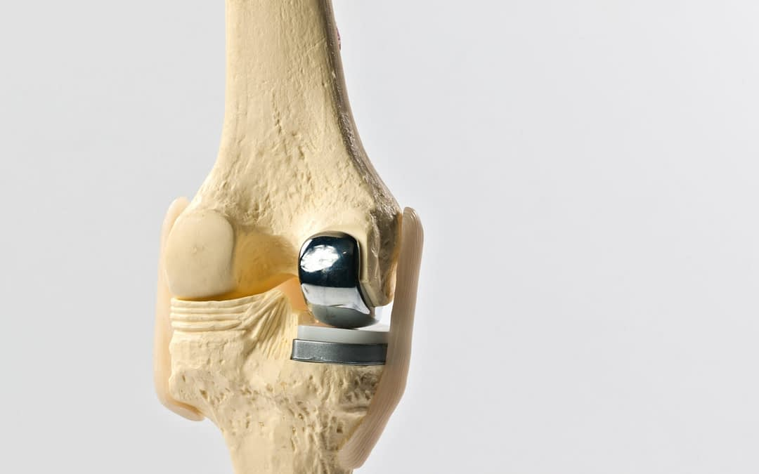 What is Unicompartmental Knee Replacement?