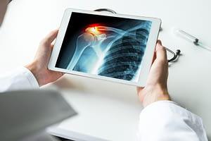 Doctor Studies Shoulder X-Ray