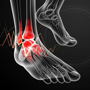 Representation of X-Ray of Ankle Pain