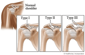 shoulder seperation