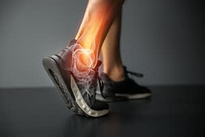 Representation of Ruptured Achilles Tendon in Ankle
