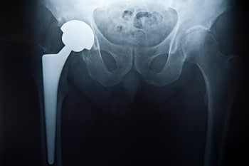X-Ray Image Of Hip Replacement Prosthetic