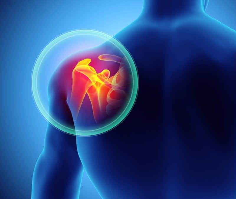 3 Ways To Treat Bone Spurs in the Shoulder - High Mountain Orthopedics