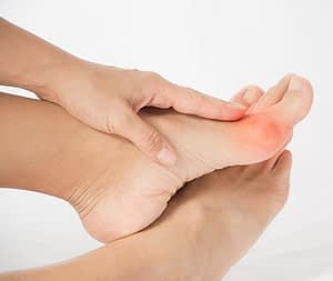 bunion pain treatment