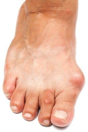 Shoes play a Role in Preventing Bunions