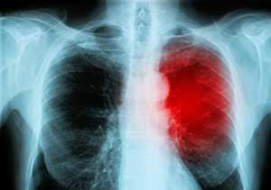Chest X-ray With Heart In Red