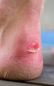 Ankle Blister