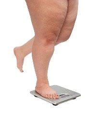 Obesity Causing Limb Amputation Epidemic in Scotland