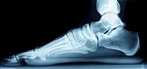 flat foot xray