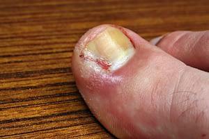 Ingrown - toe bleeding zoomed in