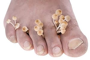 Foot with Fungus