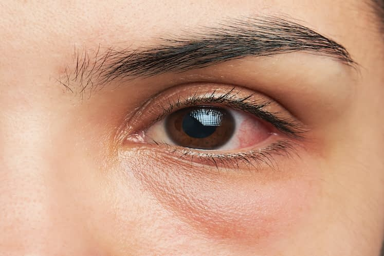 Study compares 3 intrastromal injections for recalcitrant fungal keratitis