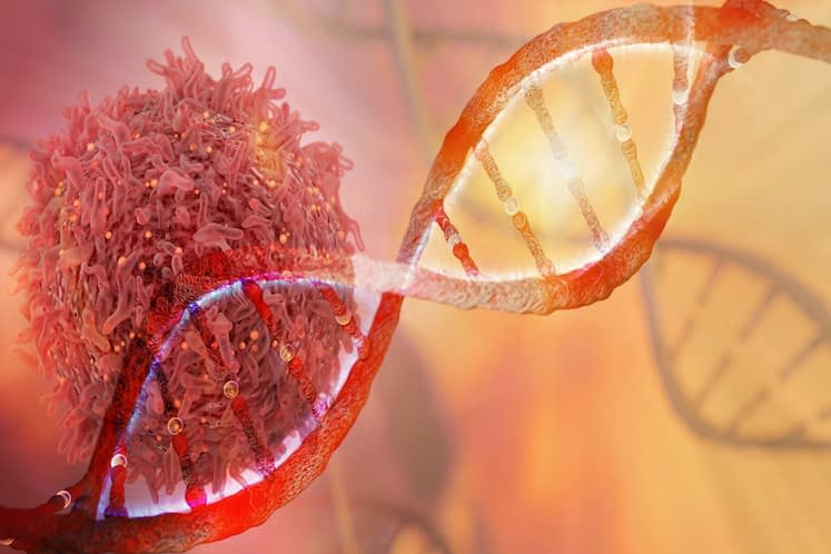 Investigational therapy improves overall survival in metastatic uveal melanoma