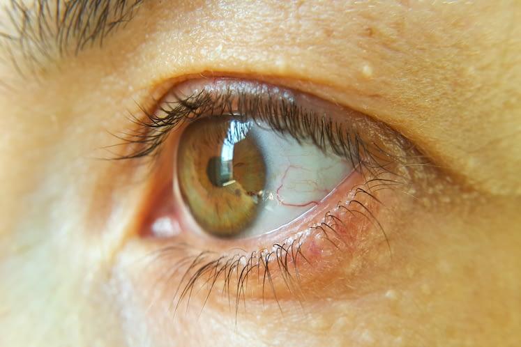 Blood vessel on the eyeball. Intraocular pressure. Bloodshot eyes. Close-up macro photography. Bleeding damage to the eye.