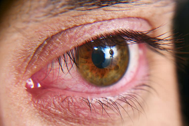 Dry eye symptom improvement reported after fecal microbial transplant