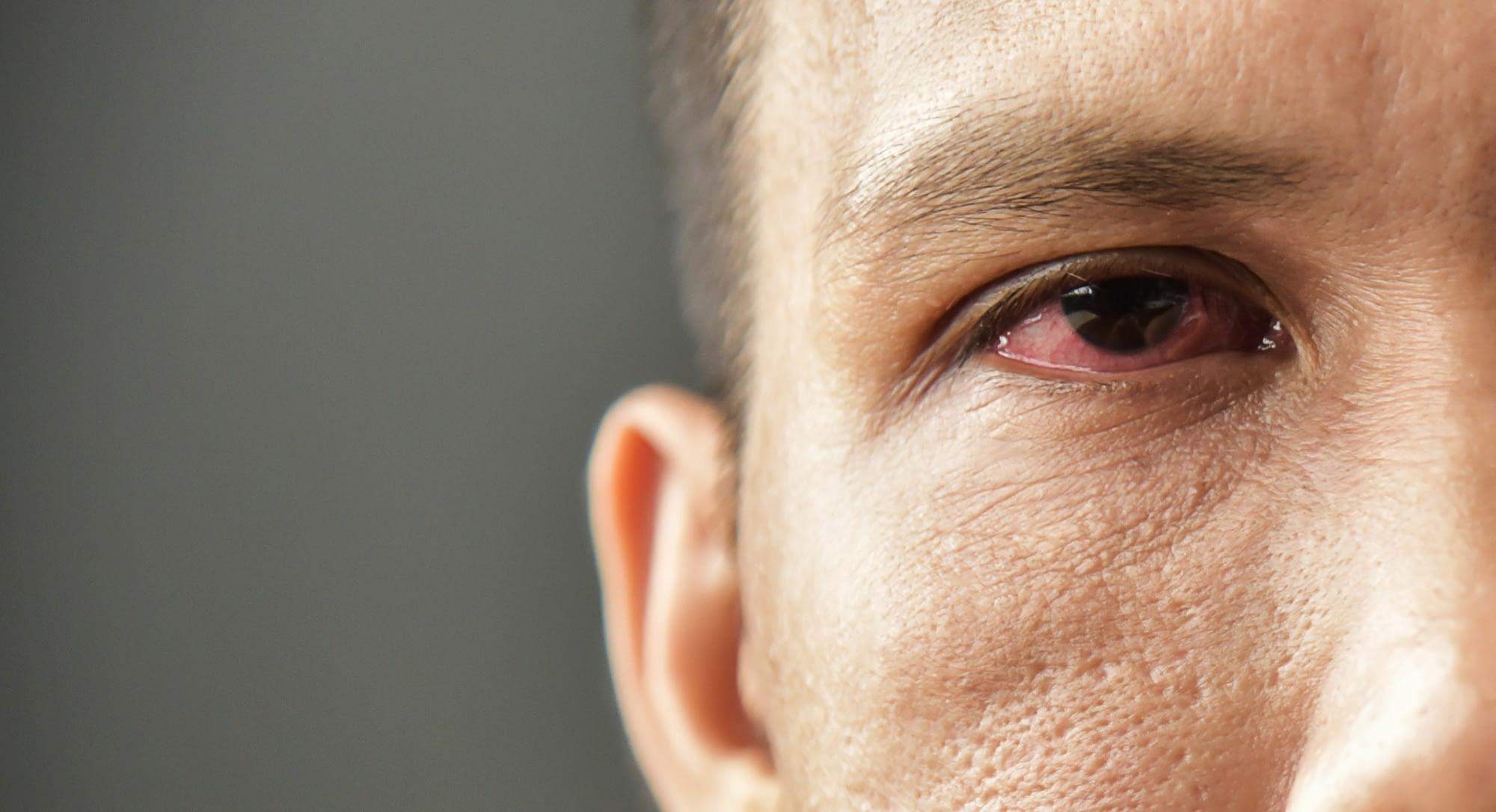 Irritated red bloodshot male eye.