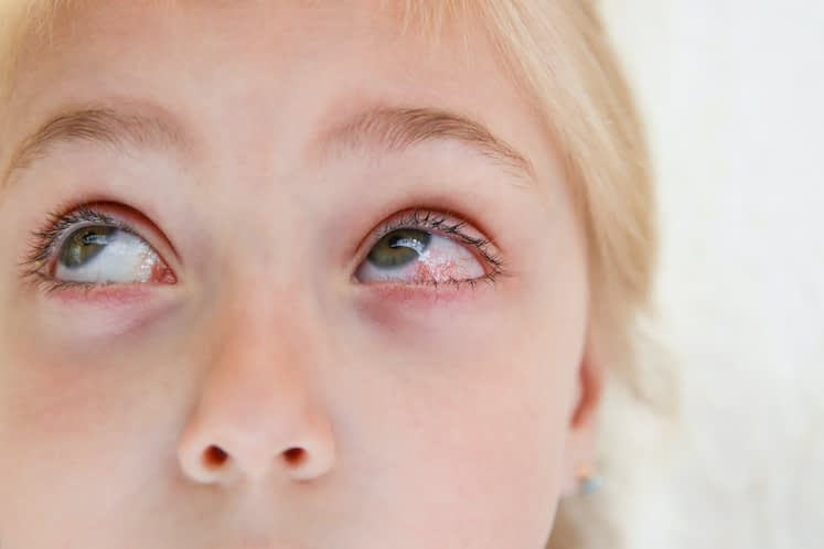 Long-term use of tacrolimus ointment safe in kids with refractory ocular surface inflammation