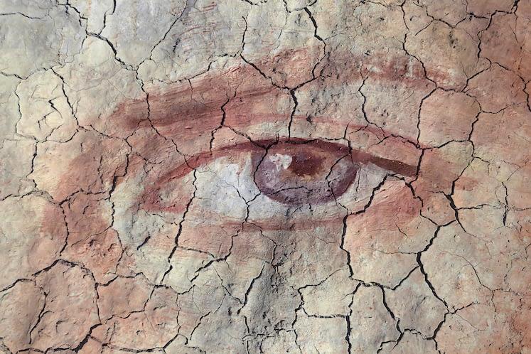 Dry Eye Disease Impacts General Health, Productivity