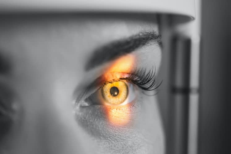 Autologous retinal transplantation: 5 things to know about this new procedure