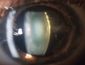 Which is most likely true of this patient's refraction?
