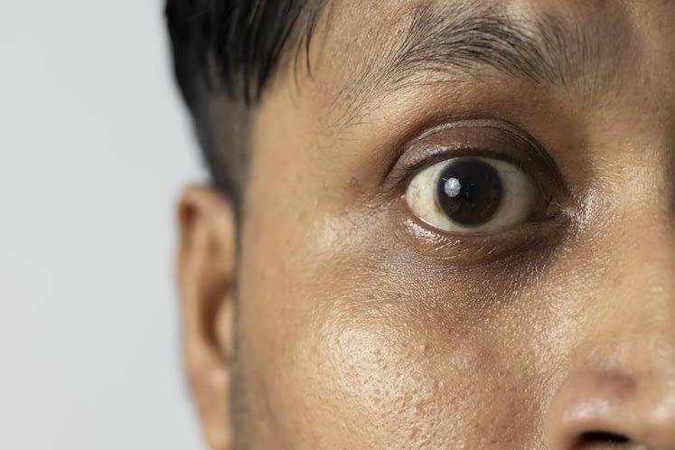 Debunking intraocular ocular tumor misconceptions