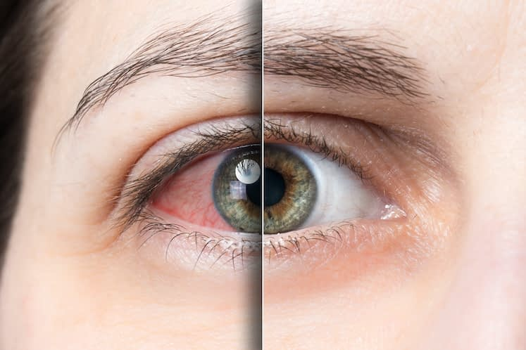 Dry Eye Awareness Month: Focus on these 3 Goals