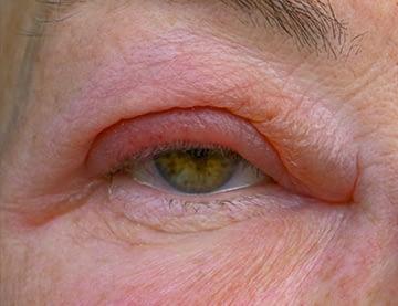 Swollen Eyelid & Characteristics of Orbital Cellulitis?