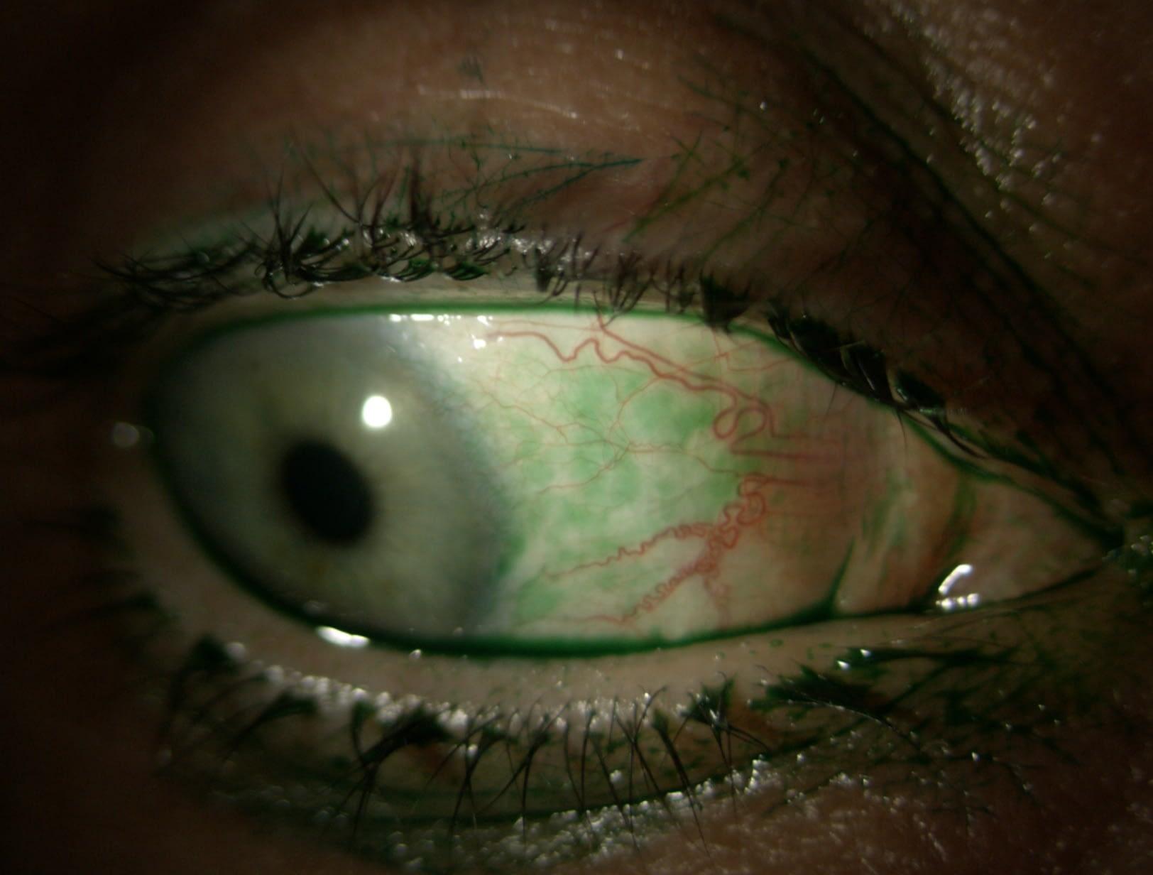 Photo Quiz: Dry Eye
