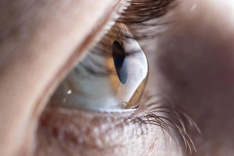 Should CXL be performed on early-stage patients with keratoconus?