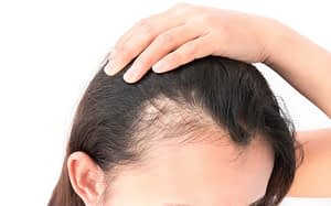 Platelet Rich Plasma (PRP) for Thinning Hair