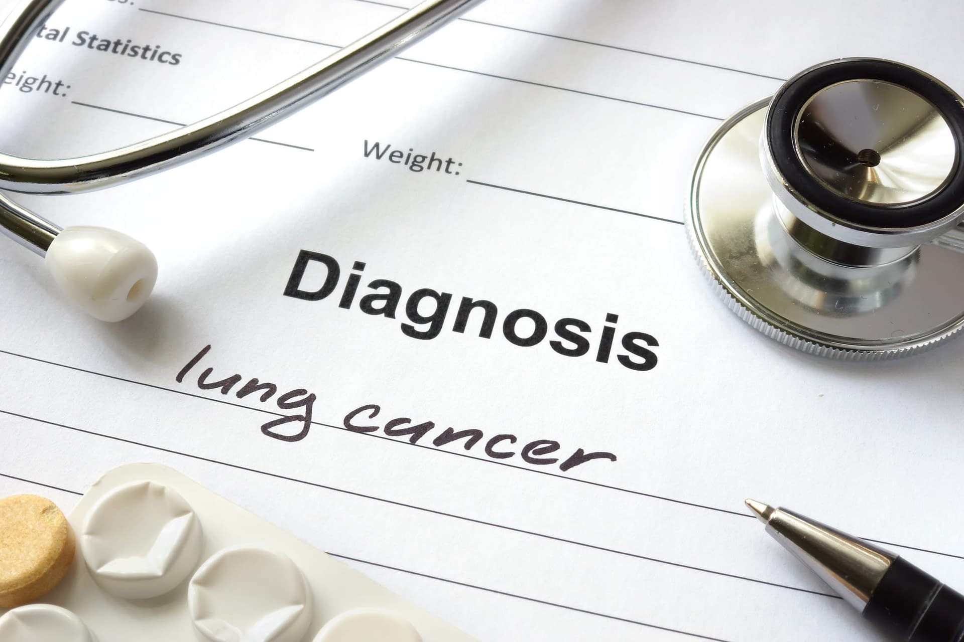 Lung Cancer Diagnosis Paper