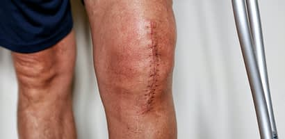 Joint Replacement Near Riverdale NJ
