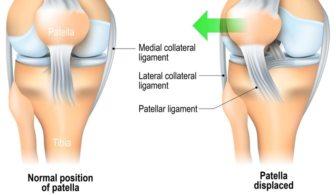 Patellar Dislocations: Signs, Symptoms and Treatments