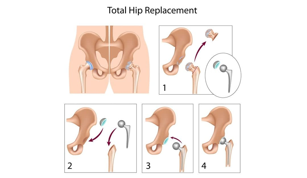 Hip Replacement: Everything You Want to Know