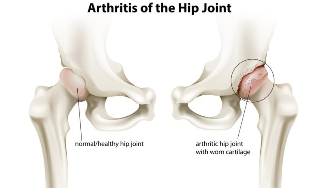 How Osteoporosis Affects the Hips