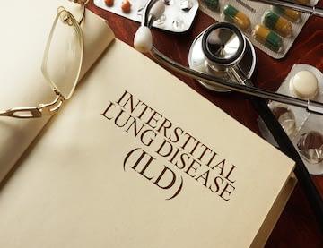 Pop Quiz: Understanding the Causes of ILD